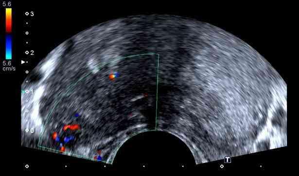 Cómo se realiza la biopsia de próstata guiada por ultrasonido