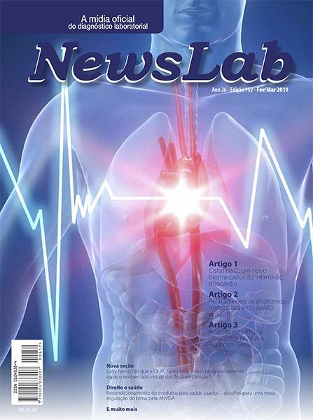 Newslab 152 capa