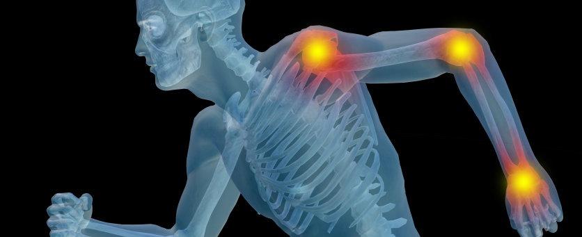 Pesquisadores brasileiros desenvolvem formulação de anti-inflamatório que atua por 10 dias em articulações