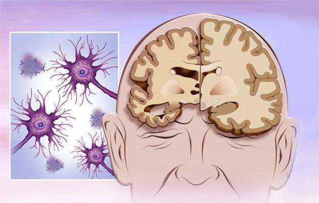 Novas perspectivas para o diagnóstico precoce de Alzheimer