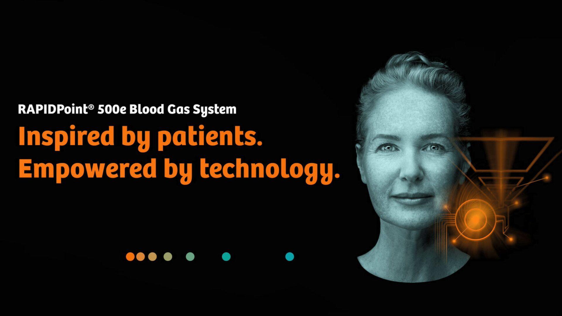 Novo lançamento Siemens Healthineers: RAPIDPoint 500e