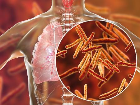 Novo teste de detecção da tuberculose é incorporado ao SUS
