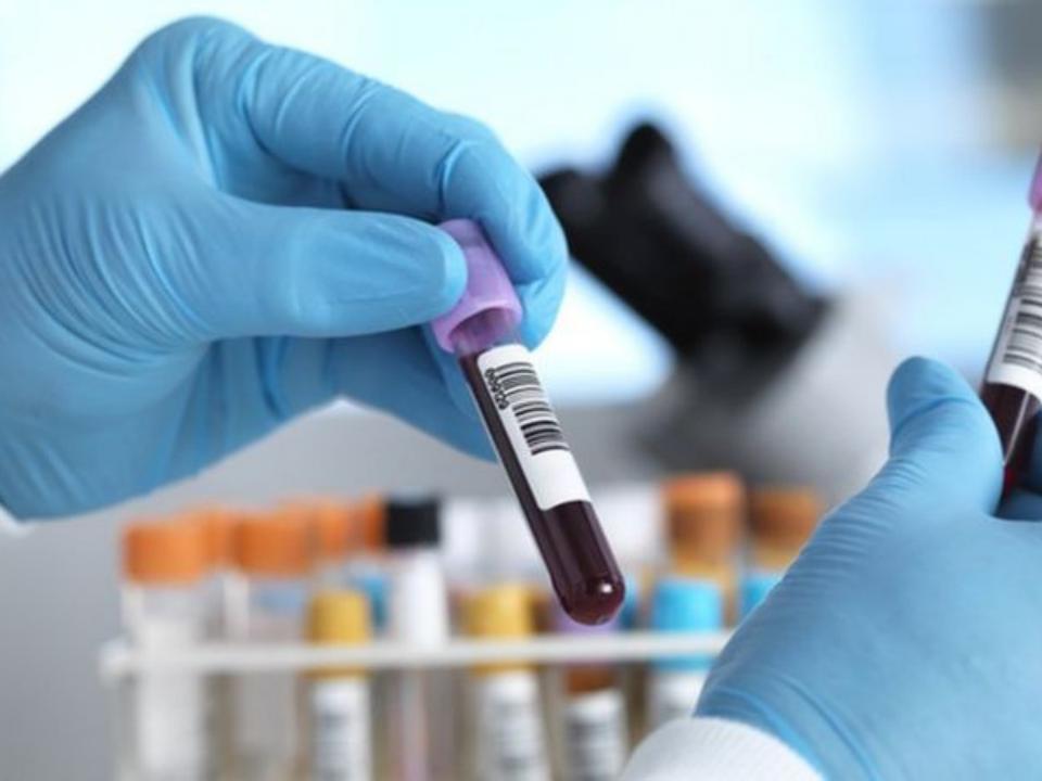 Colesterol alto causado por mutações do DNA está entre as doenças genéticas mais comuns