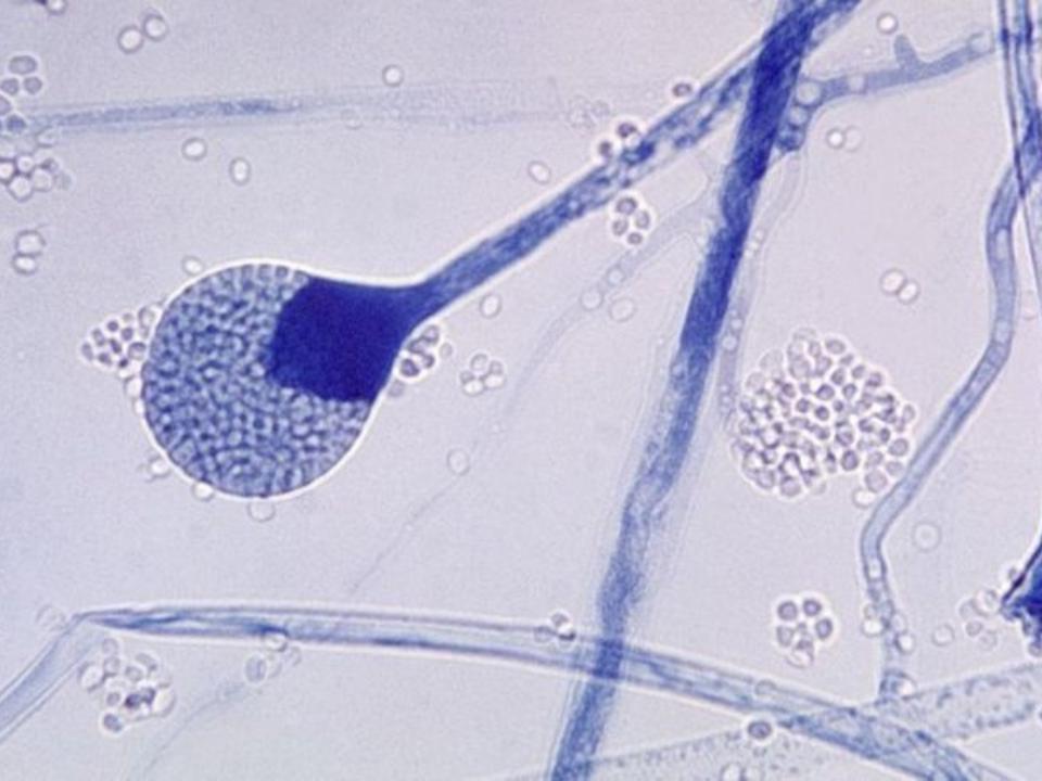 Mucormicose: 5 perguntas-chave sobre infecção rara que mutila e mata pacientes de covid na Índia