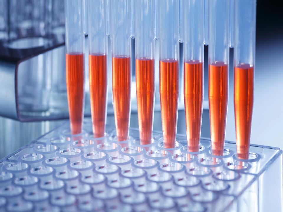 Instituto Butantan inicia ensaios clínicos para testar soro contra a Covid-19