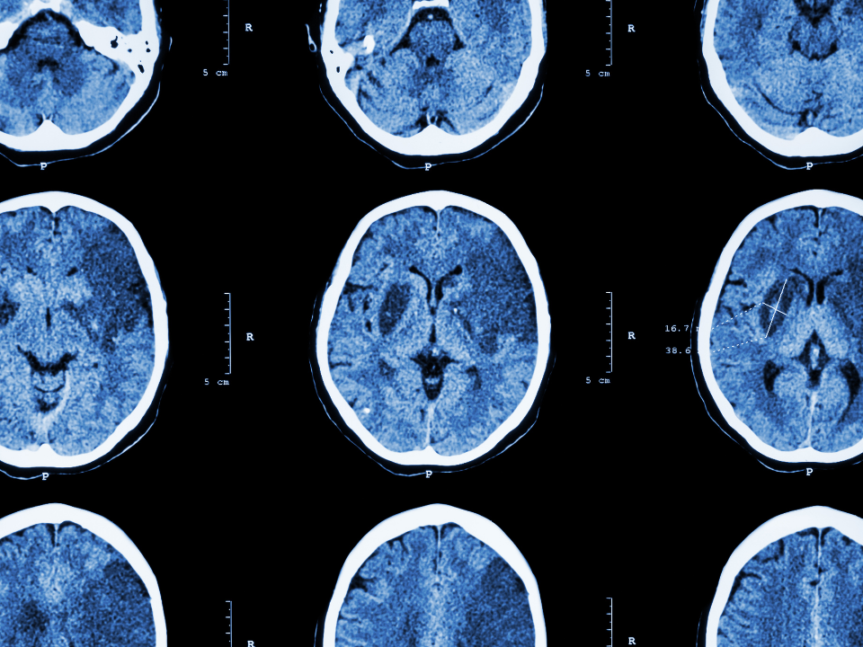 Laboratório da UFSCar oferece exames gratuitos para pessoas que tiveram Acidente Vascular Cerebral